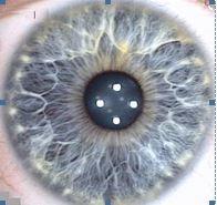 oog zuur